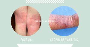 If You're Suffering from Ezcema