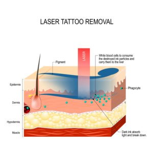 how laser tattoo works