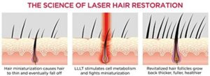How Does Laser Hair Therapy Work