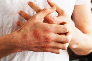 eczema and other skin conditions