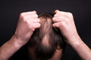 6 Types of Hair Loss and Scalp Problems