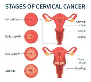 Stag of cervical cancer