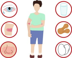 Symptoms of a Food Allergy