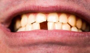 cracked teeth or even loss of teeth