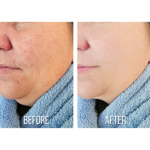 Treatment of rosacea usually